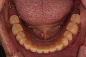 下の総入れ歯を入れた状態