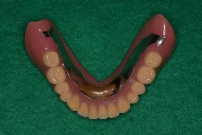 下の総入れ歯