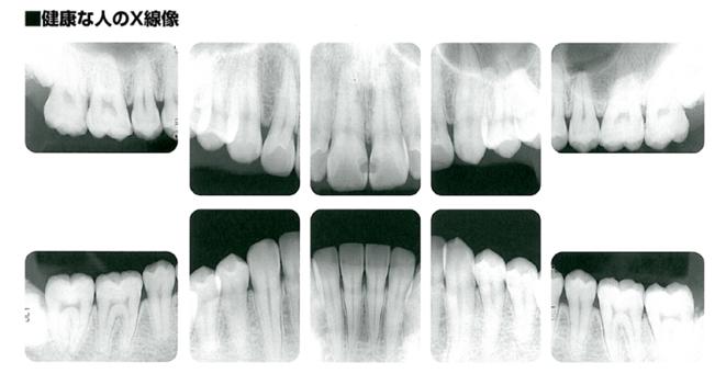 健康的な歯槽骨を示すレントゲン写真