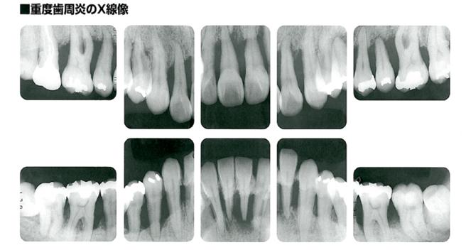 病的な歯槽骨を示すレントゲン写真