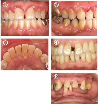歯 周 病 治し 方